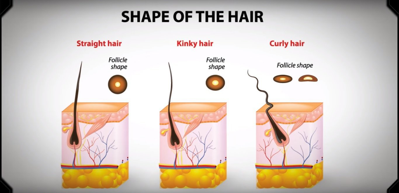 asymmetrical hair follicles cause curly hair